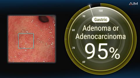 人工知能による胃がん内視鏡画像診断支援システム開発